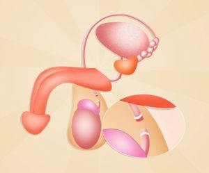 Vazektomia - mužská serilizácia