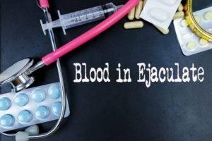 Krv v ejakuláte
