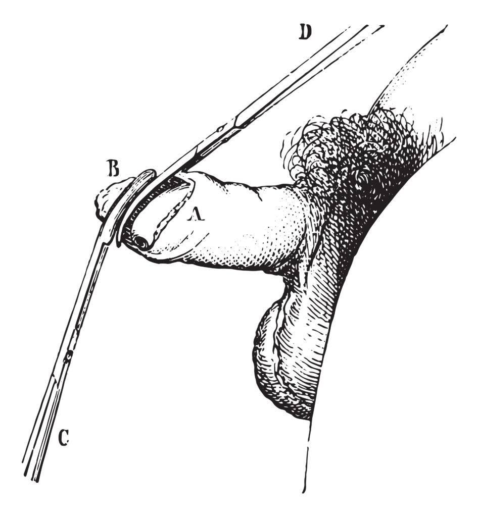 Fimóza - operácia obriezka