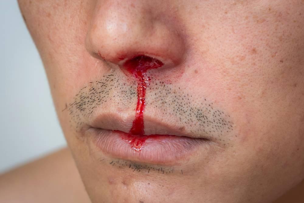 Používaním Poppers riskujete poškodenie sliznice nosa