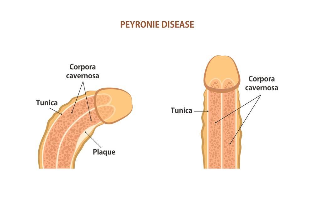Peyronieho choroba